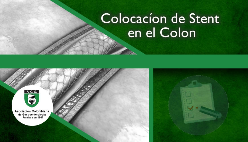 Colocacíon Stent en colon