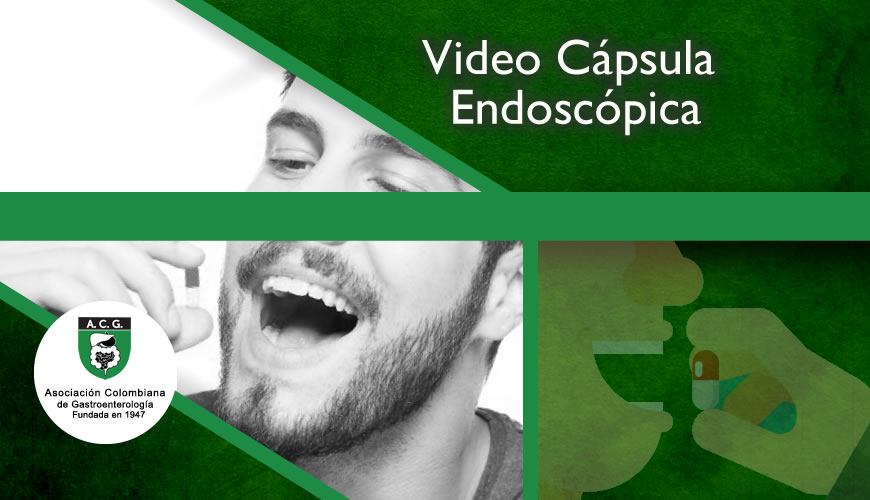 Video cápsula endoscópica